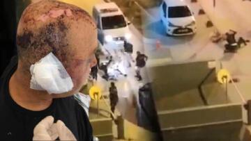 Polis memurunun başına telsizle defalarca vurmuştu! Flaş gelişme